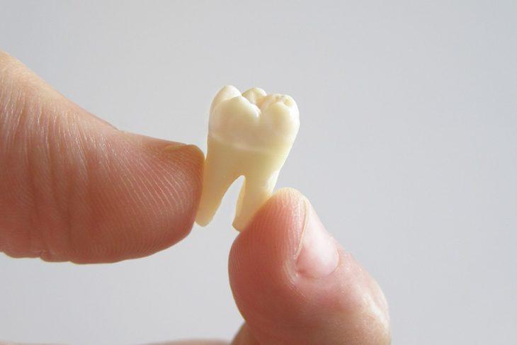 三種人工假牙你會點揀