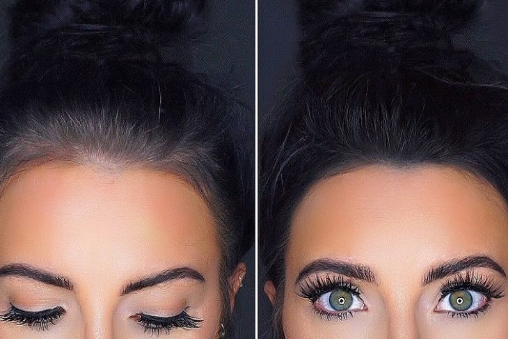 紋髮際線和種植髮際線的差別